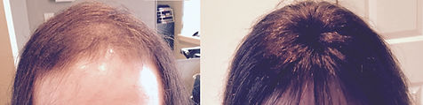 hair_replacement_before_after_8.jpg