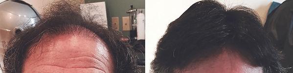 hair replacement for men east longmeadow
