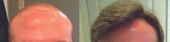 hair_replacement_for_men_arlington_ma.jp