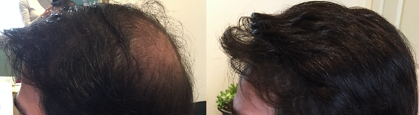 hair replacement system taunton.png