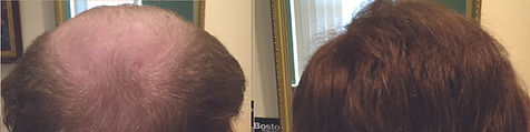 hair_replacement_before_after_20.jpg