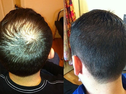 hair replacement for men massachusetts.j