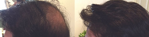 hair_replacement_before_after_31.jpg