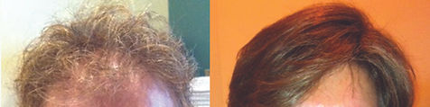 hair_replacement_before_after_18.jpg