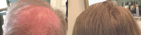 hair_replacement_billerica_ma.jpg