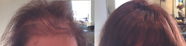 wilbraham hair replacement.jpg