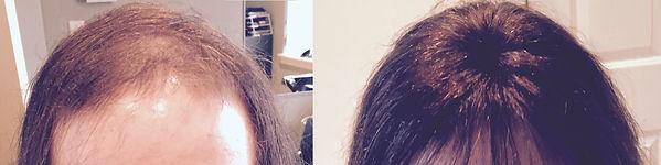 burlington ma hair replacement.jpg