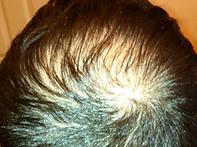 Hair Loss Solution Boston