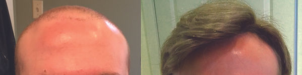 hair_replacement_for_men_plympton_ma.jpg