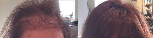 tyngsborough_hair_replacement-for_women.