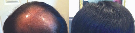 hair_replacement_before_after_21.jpg