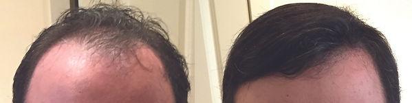 hair_replacement_near-holliston_ma.jpg