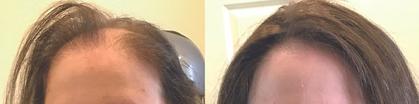 hair_replacement_douglas-ma.jpg