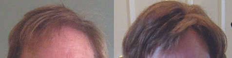 hair_replacement_before_after_10.jpg