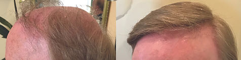 hair_replacement_before_after_14.jpg