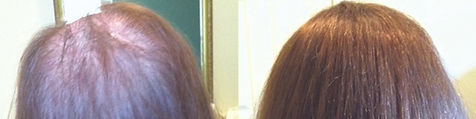 hair_replacement_before_after_17.jpg