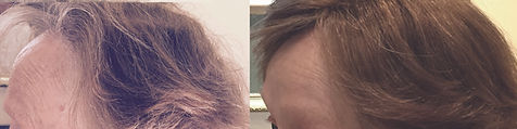 hair_replacement_before_after_29.jpg