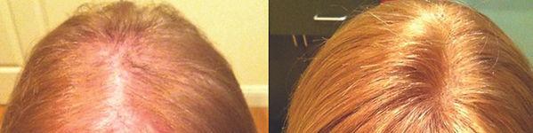 tyngsborough_hair_replacement_for_women.