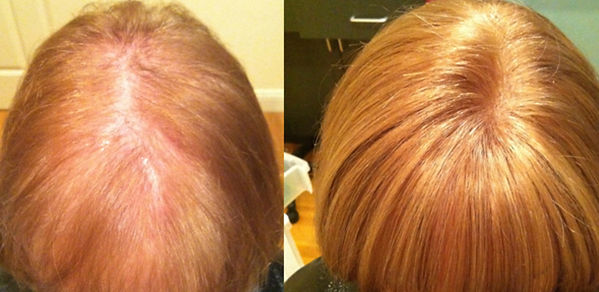 hair replacement systems for women.jpg