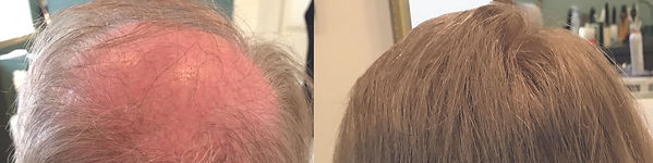 hair_replacement_before_after_ashburnham