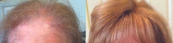 chelmsford-hair_replacement.jpg