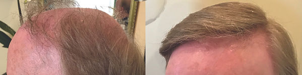 hair replacement for men chestnut hill.j
