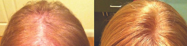 middleborough_hair_replacement_for_women