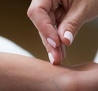 Acupunctue