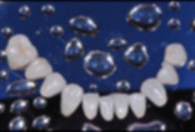 colar de perolas dentais