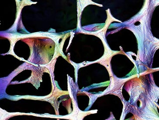 """Osteoporosis – the """"silent thief"""""""