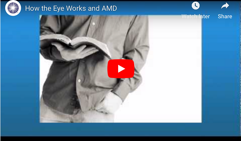 AAO AMD.png