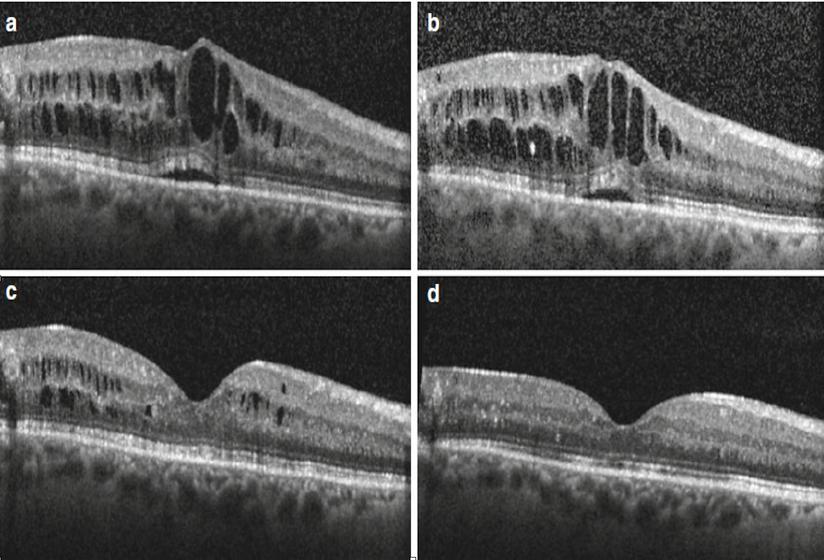 DMO Treatment by Dr Rahman Nazari Ophthalmologist