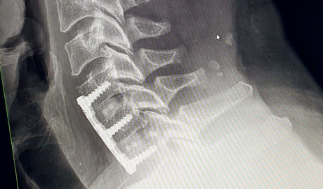 Titanium now in my neck