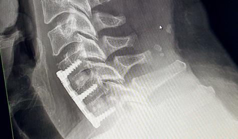 Titanium now in my neck