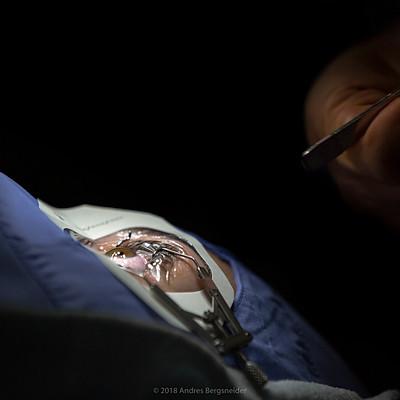 Dr. Aparicio-Cirugia Refractiva de Laser