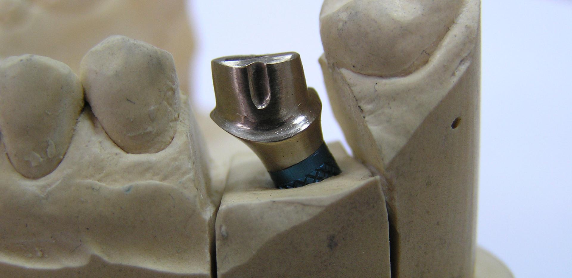 имплант.JPG.jpg