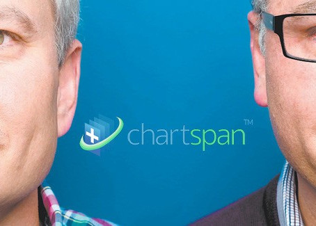 What is Chartspan?