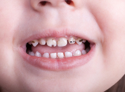 Baby teeth can start to decay as soon as they appear