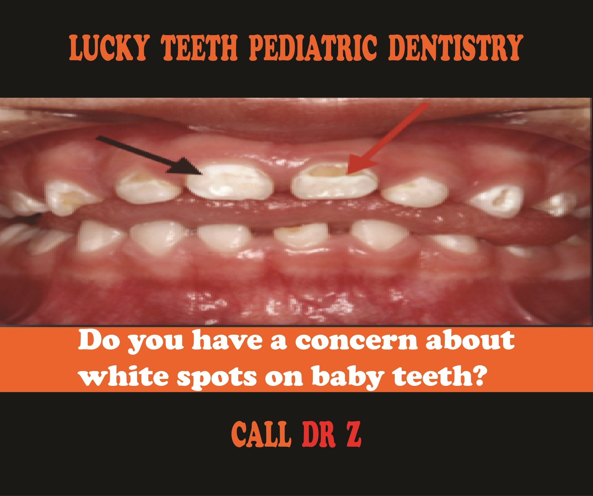 Lucky Teeth Pediatric Dentistry