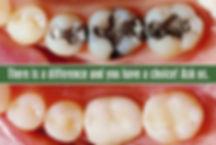 White fillings Lucky Teeth.jpg