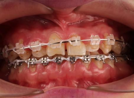 Higiene de un paciente con Brackets
