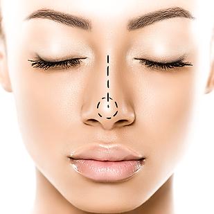 Bioplastía Facial