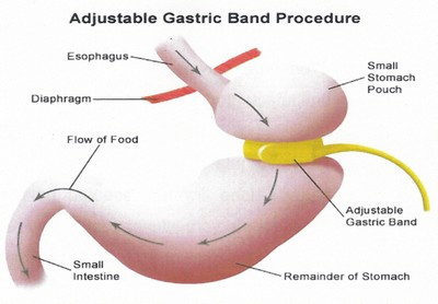 Quantum Leap Hypnotherapy | Auckland - Virtual Gastric Band