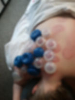 Cupping picture.jpg