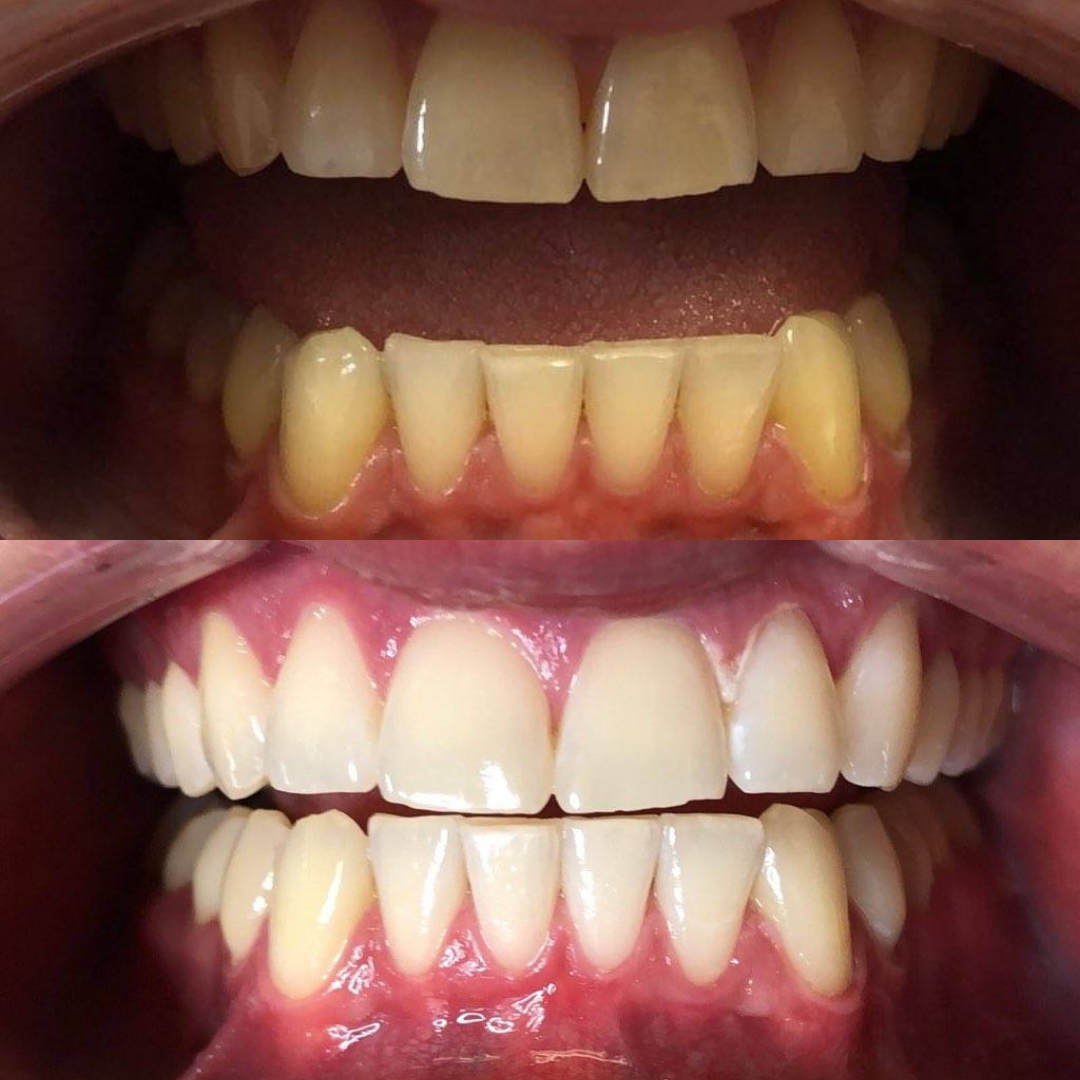 Teeth whitening results from Luxury Beauty Clinic