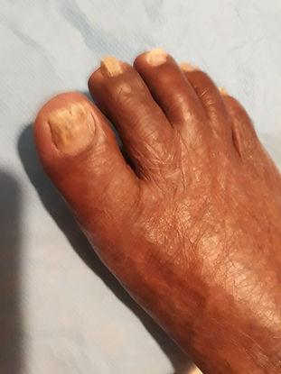 mycoses aux pieds