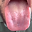 Thumbnail: Ari Swallows Tiny Patient