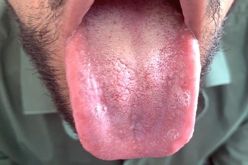Ari Swallows Tiny Patient