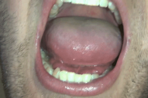 Cody's Big Mouth & Tongue