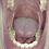 Thumbnail: Eric's Big Mouth